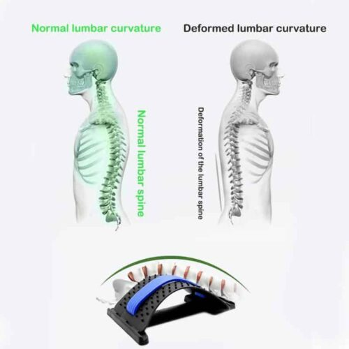 Back Stretcher For Lower Back Pain 2